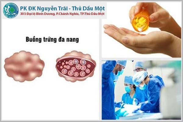Các phương pháp điều trị đa nang buồng trứng hiệu quả