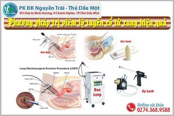 Phương pháp hỗ trợ chữa viêm lộ tuyến cổ tử cung hiệu quả cao