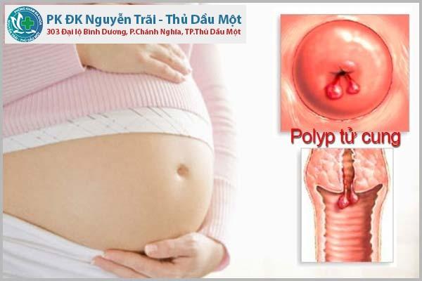 Những điều đáng chú ý về polyp cổ tử cung khi mang thai