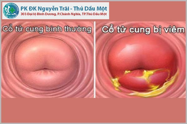 Những hình ảnh cổ tử cung bị viêm chị em cần lưu ý