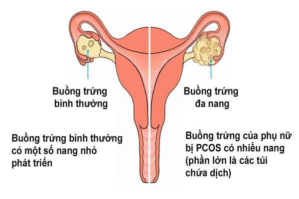 Đa nang buồng trứng căn bệnh dẫn đến vô sinh